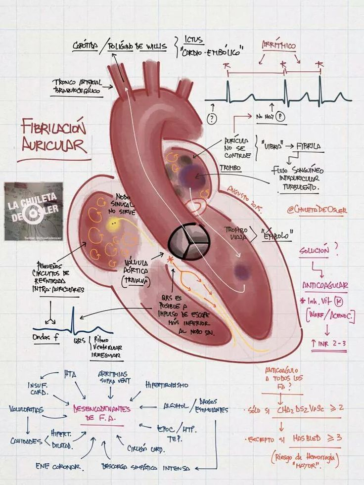Fibrilación Auricular, en apoyo a los #cardiotuiteros que aman la #cardiología, gracias a @chuletadeosler