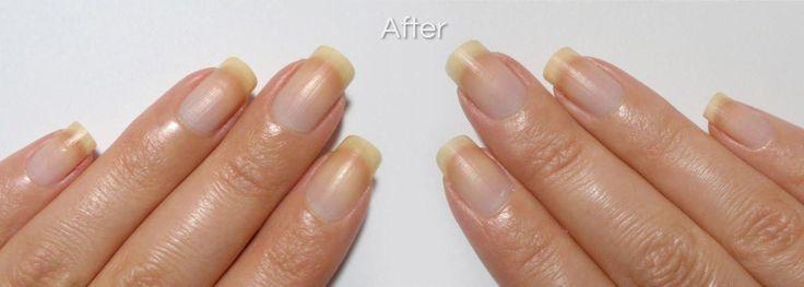 Fungus infection toenail nailpolishwithfungustreatment