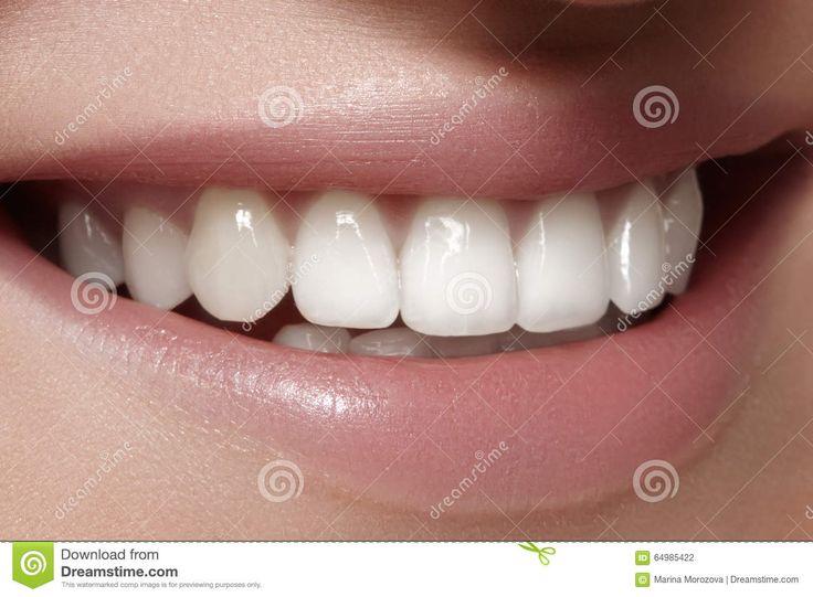 Красивая улыбка с забеливать зубы Зубоврачебное фото Крупный план макроса…