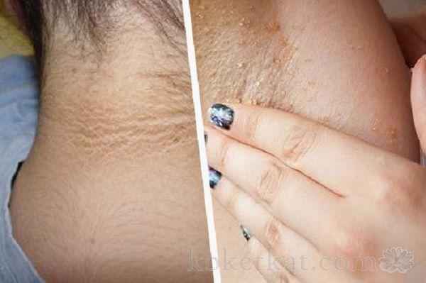 Средства от темных пятен на шее, в области подмышек и внутренней поверхности бедер.  Каждой женщине известно, что кожа показатель не только здоровья, но и красоты. Но иногда на коже появляются темные пятна. Особенно этому подвержены область подмышек, шея, локти, колени и внутренняя поверхность бедер. Существует не мало причин появлен...