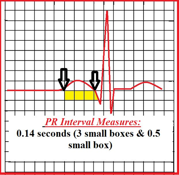 How to Measure a PR Interval! EASY Explanation