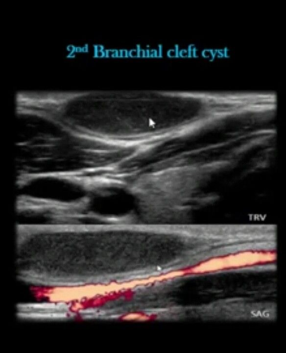 Neck Ultrasound Infected Second Branchial Cleft Cyst Ultrasound