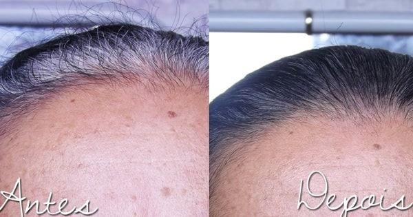 Como acabar com os cabelos brancos utilizando essa receita caseira totalmente natural para escurecer os fios e eliminá-los de vez.