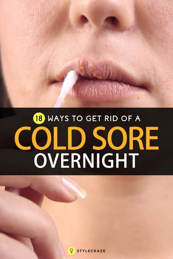 how to clear a cold sore overnight