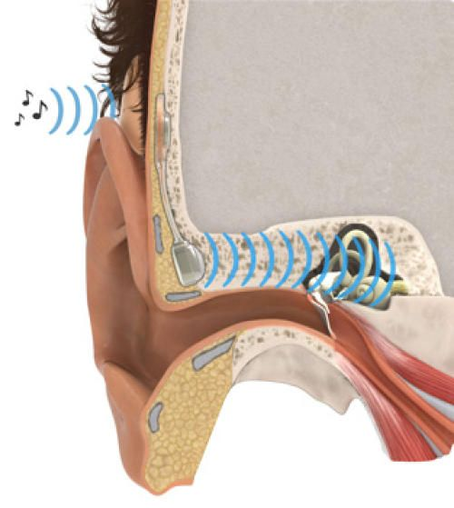 Functionally deaf patients can gain normal hearing with a new implant that replaces the middle ear.