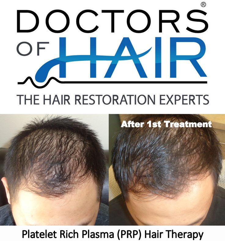 #PRP #Hair Therapy.  We're #HairRestoration Experts. #FREE Consultations. ☎ (888) 676-6027  #HairLoss #Bald #HairGrowth #Alopecia #LongHair