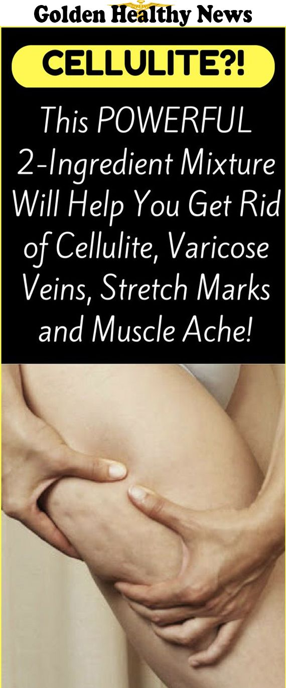 APPLE CIDER VINEGAR HELPS CELLULITE DISAPPEAR MAGICALLY!