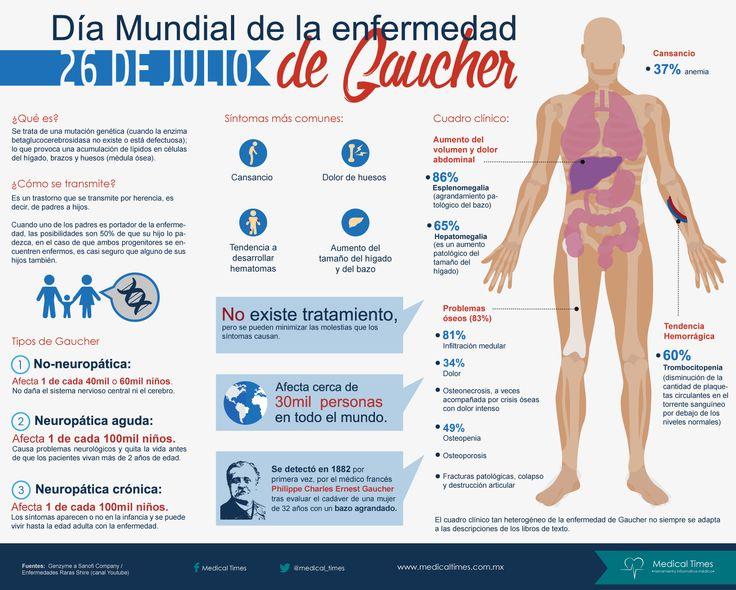 Día Mundial de la enfermedad de Gaucher, Infografía ...