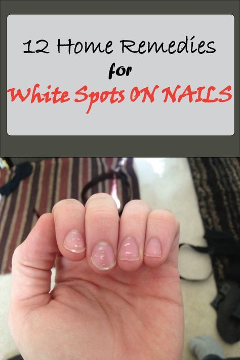Nail fungus or leukonychia is characterized by white spots on the nails.These are very common, everyone at some point in their lives experience them. These spots can indicate a few different things