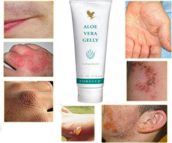 Skin Conditions? Try Aloe Vera Gelly £12.24