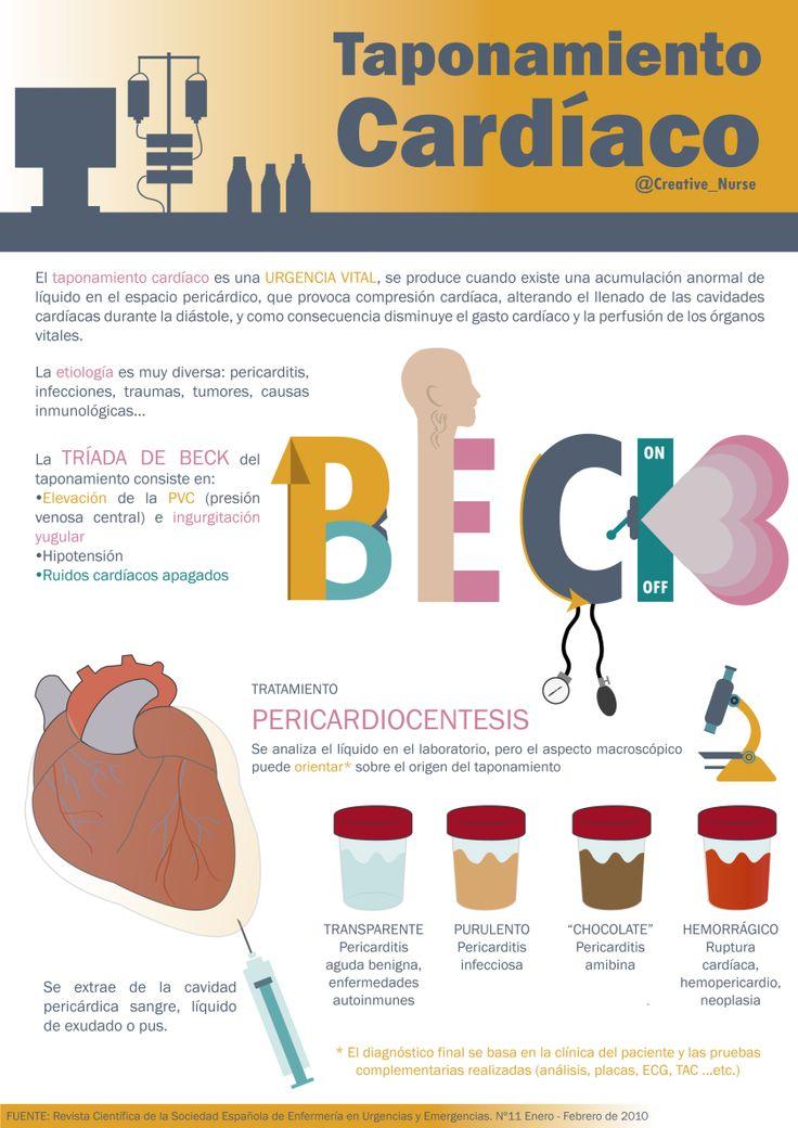 Tríada de BECK y taponamiento cardíaco. enfermeriacreativa.com