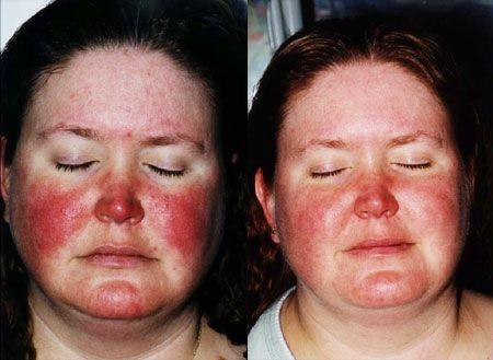 Intense Pulsed Light (IPL) - Dermatological Treatments