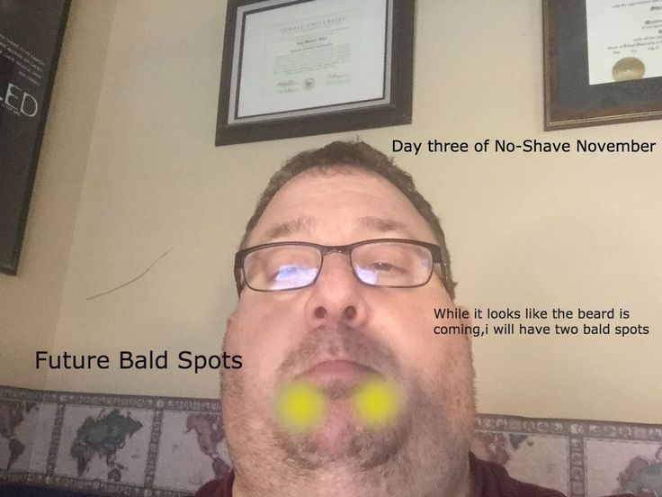 Day 3 of no-shave november .QuintilesIMS .Socrata No-Shave November .  Donate to this important cause. .HIMSS