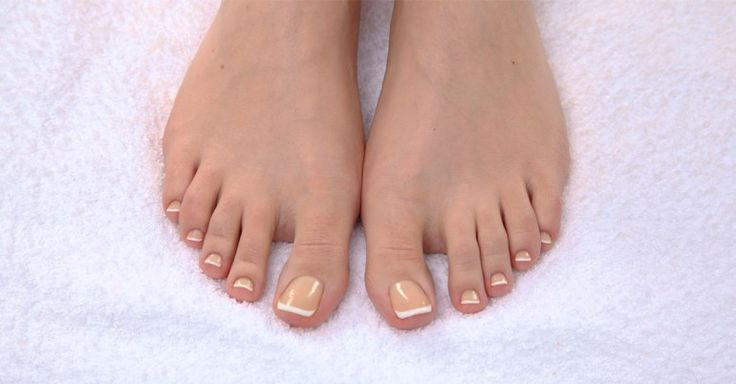 Yellow toenails, usually benign, can be embarrassing and also painful in severe cases. Try these natural home remedies to get rid of the discoloration.