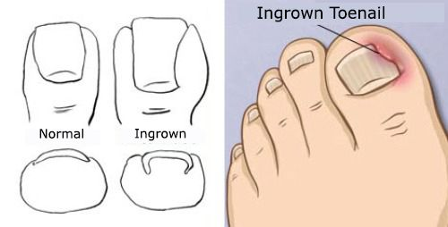 Treatments for Ingrown Toenails - Step to Health