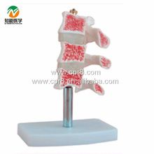 BIX-A1015 Human Osteoporosis Anatomical Model (3 Vertebrae) G021 //Price: $US $9.75 & FREE Shipping //