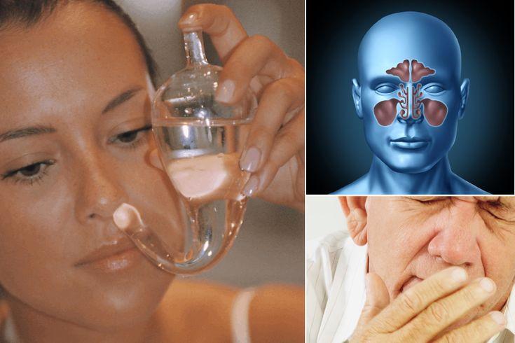 7 remedios para curar la sinusitis y la rinitis