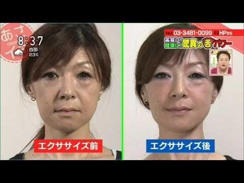 "NHK あさイチ「美容に!健康に!驚異の""舌""パワー」 ほうれい線 消す方法 - YouTube"