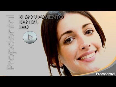 Blanqueamiento dental Led de Noelia Lopez