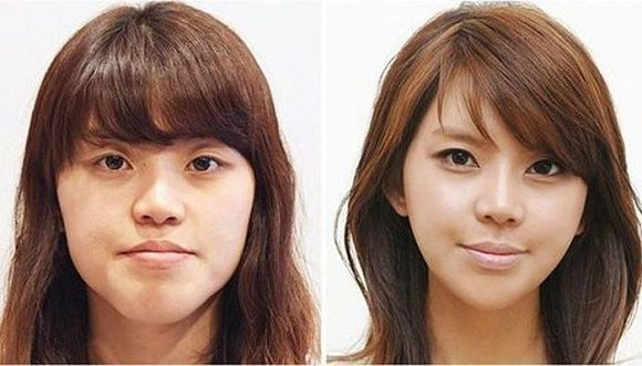 Beforeandafter images of cosmetic surgery from South Korea Beforeandafter images of cosmetic surgery from South Korea