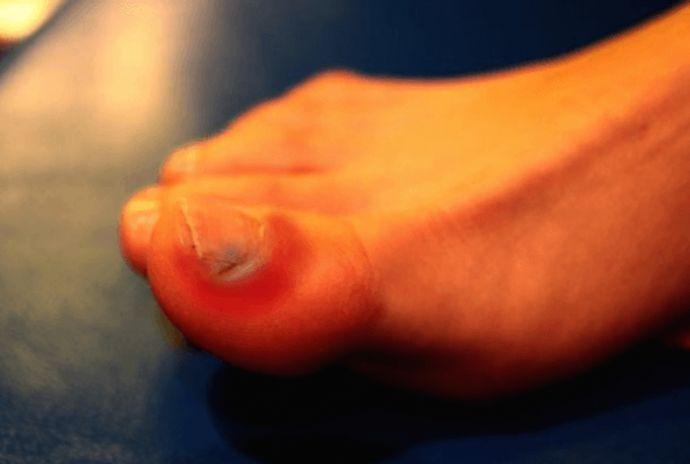 Cum sa tratezi eficient unghiile incarnate   Secretele