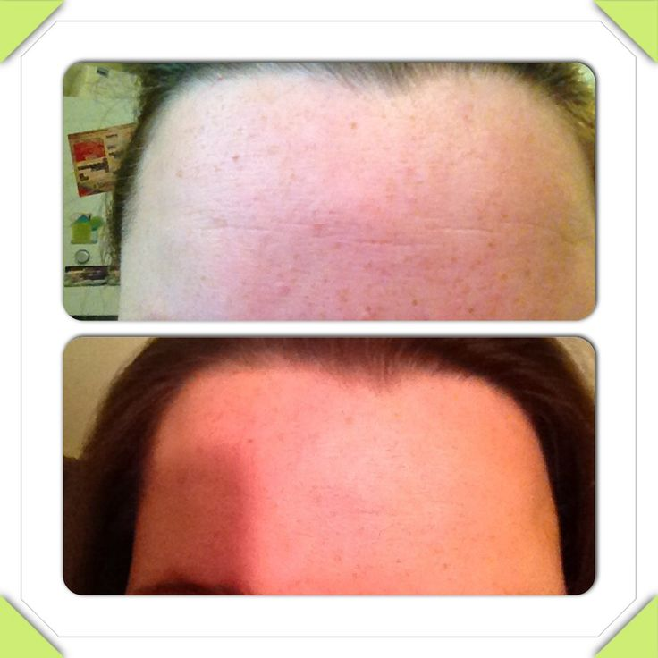Looking for any testimonials or personal results with Arbonne and psoriasis 2