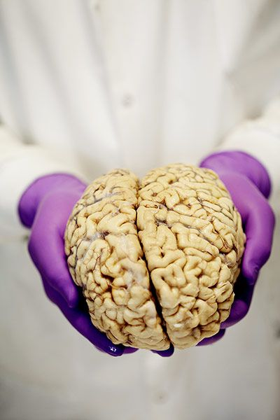 A human #brain dissection, in pictures.  Research done on brains can help us to understand neurodegenerative disorders including Parkinson's, Alzheimer's and multiple sclerosis.