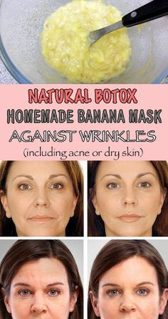 Natural Botox Banana Mask Against Wrinkles, Acne and Dry Skin - 6 Anti Aging Homemade Remedies with An Immediate Botox Effect