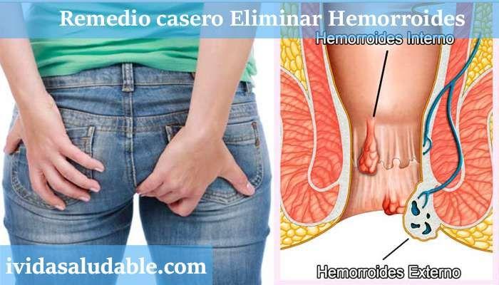 Tener hemorroides es realmente incomodo factores que intervienen son la presión, picazón Remedio Casero para eliminar las Hemorroides para siempre!