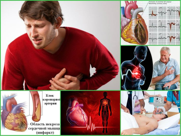 Особенности инфаркта миокарда