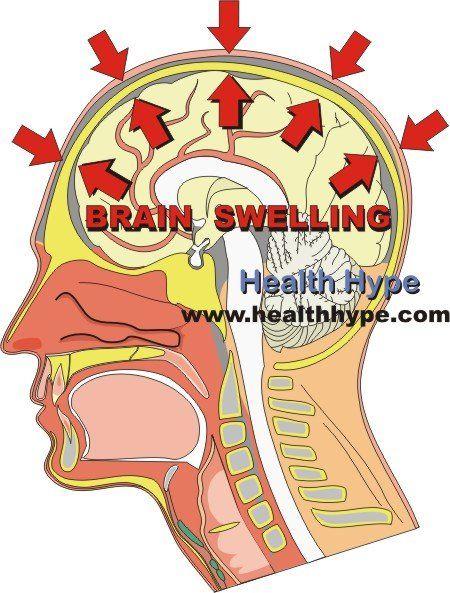 Brain Swelling (Cerebral Edema)