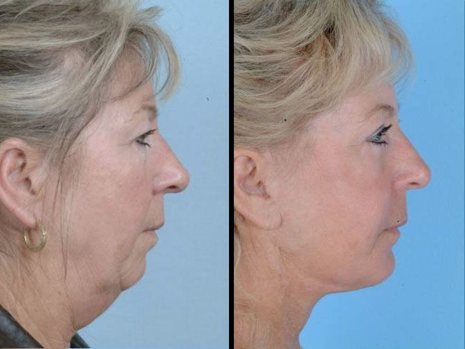chin cheeks sagging face and neck skin being lifted up with facelift exercises