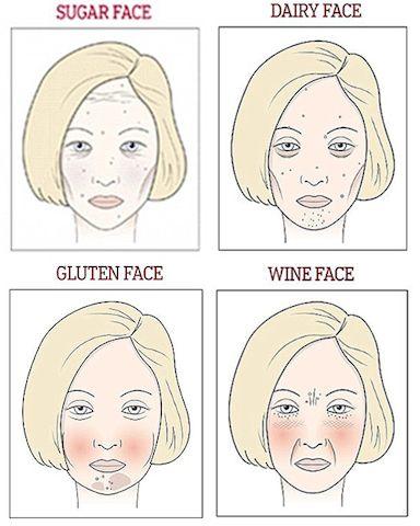 砂糖顔:目元や額にシワが出やすいやつれた顔。砂糖の摂り過ぎにより肌が糖化し、コラーゲンが劣化。痛みを伴う吹き出物ができ、肌は薄くグレイッシュに。たるみやシワに見舞われやすくなる。  乳製品顔:乳糖に対する不耐性が、腫れや炎症を引き起こすのがこのタイプ。目の下にクマやたるみぐまができやすいのも特長で、ホルモンバランスへの影響であご周りに吹き出物ができやすい。  グルテン顔:頬が赤みを帯びて膨みがちで、あご周りに色素沈着やシミがでやすい。グルテンが炎症反応や腫れを引き起こすのが原因。  ワイン顔:頬や鼻周りの赤み、シワや深いほうれい線が特長。アルコールによる臓器への悪影響だけでなく、脱水症状も問題。セレブも驚く「砂糖顔、乳製品顔、グルテン顔、ワイン顔」分析 | こちらハリウッド美容番