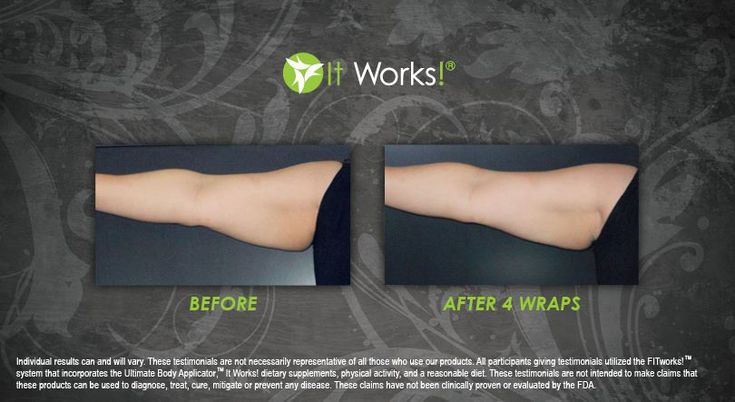 This Crazy Wrap Thing is changing lives all over the world! See incredible results like this one and wrap yourself to a new you with one box of Wraps! getfitwithemily.m... As you see here you can target any area of your body with these wraps from the neck down! Cut them to place in different areas! If you have any questions find me on FB facebook.com/WrapWithEmily #DebtFreeIsTheNewSexy #FriendshipFunFreedom #ItWorks #GetYourSexyBack