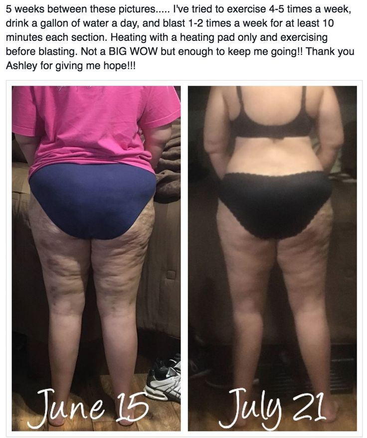REAL clients, REAL results, REAL lives changed!  The FasciaBlaster® may seem too good to be true, but we KNOW you'll absolutely LOVE your renewed, smooth, #healthy, dimple-free #skin after a few weeks of using the #FasciaBlaster® for just 10-30 minutes a few times a week. It's as easy as scrubbing away at your trouble spots and releasing the tight fascial adhesions that have been restricting your #joints, #muscles, #circulation, nerves and more from performing at optimal capacity and causing…