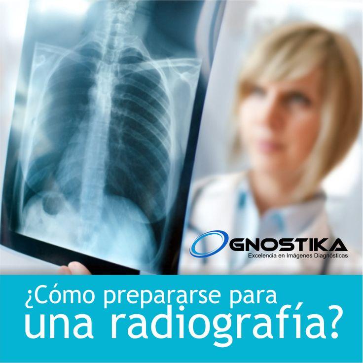 ¿Ya conoce los diferentes tipos de #radiografías?