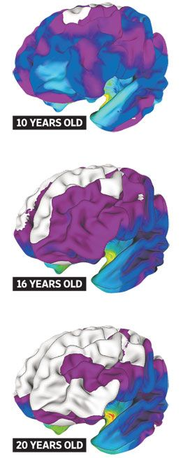 As Little Girls and Boys Grow, They Think Alike by Avery Johnson: By measuring the thickness of the brain's cortex and how it changes over time, scientists have found that boys' and girls' brains, on average, differ significantly at age 9. But by the time the participants reached age 22, the brains of the two sexes grew more alike in many areas critical for learning. These images are combined male/female brains. White shows areas of concordance. #Gender_Development #Brain #WSJ #Avery_Johnson