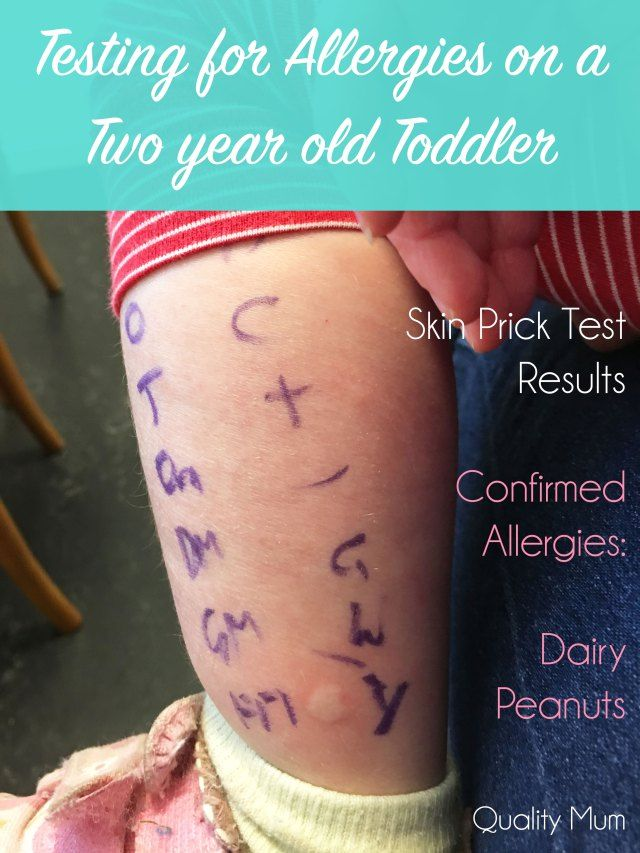 Allergy Testing - Skin Prick Test - Age 2 year old - Results