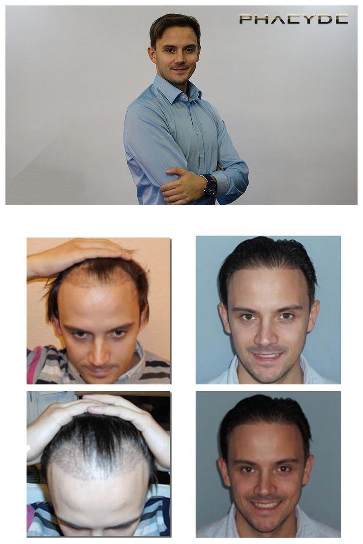 Implantación del pelo de 5.000 pelos - PHAEYDE Clínica Miklos tenía problemas de calvicie en sus templos = zonas 1 y 2. El tratamiento de trasplante de cabello se hizo con los pelos largos. Sólo la zona donante fue cutted corta, la implantación fue entre los pelos largos. Hecho por la Clínica PHAEYDE. http://es.phaeyde.com/trasplante-de-cabello