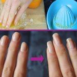THIS IS THE RIGHT WAY TO BAKING SODA ON MELTED BELLY, LEGS, …