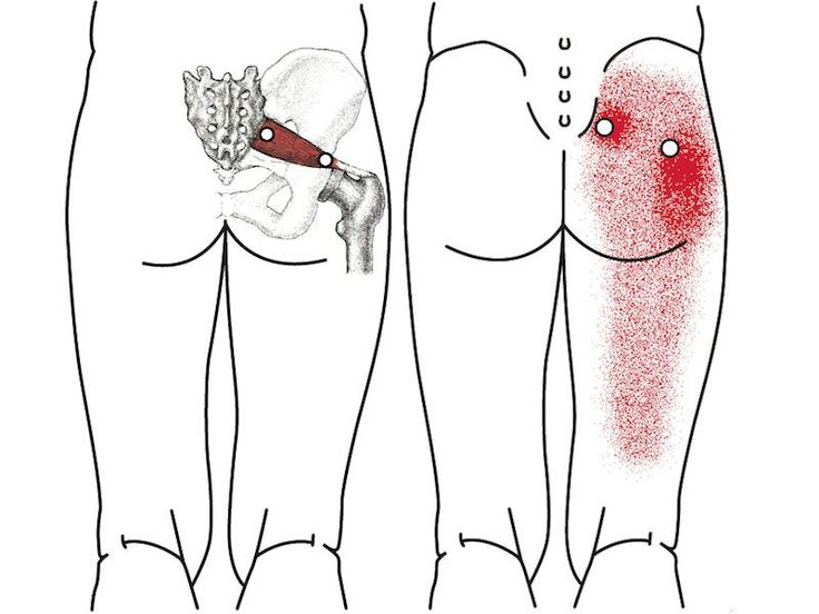"""Termín """"boľavé kríže"""" odkazuje na bolestivý pocit v dolnej časti chrbta, zadku, a ramien, ku ktorému dochádza v dôsledku pomliaždenia alebo podráždené sedacieho nervu – najväčší a najhrubší nerv v tele Ľudský. Bolesti krížov nie sú medicínsky diagnostikované sáme, ale je to jedna z najbežnejších problémov s chrbtom v dnešnej"""