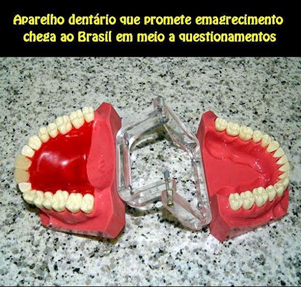 Aparelho dentário que promete emagrecimento chega ao Brasil em meio a questionamentos | OVI Dental