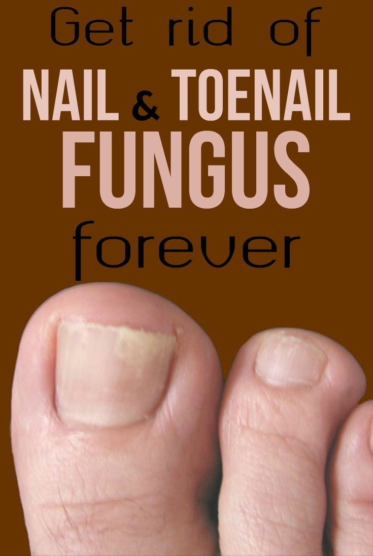 Get rid of nail and toenail fungus forever
