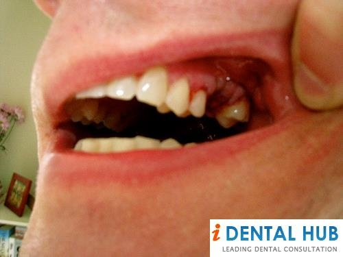 how long will mouth hurt after tooth extraction