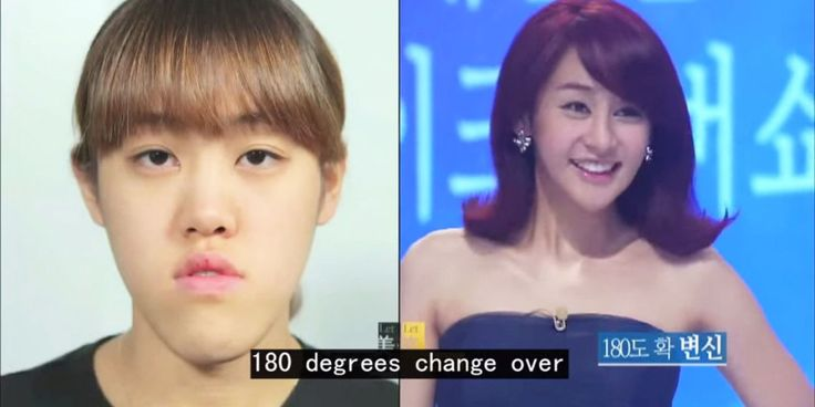 this south korean plastic surgery makeover show is the craziest