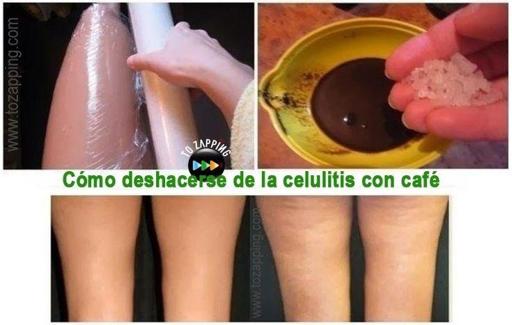 Cómo deshacerse de la celulitis con café. El mejor remedio casero para la celulitis es un alimento que solemos tener casi todos en casa, el café molido. El
