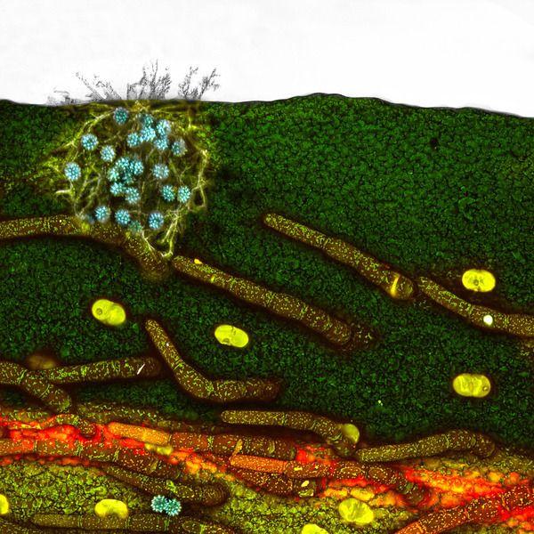 Płatek stokrotki z infekcją grzybiczą i ziarnami pyłku (powiększenie 10x), fot. Paul Joseph Rigby