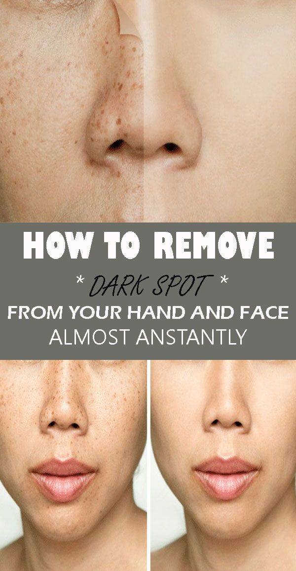 This 2 Ingredient Remedy Removes All Spots From Your Face In Just 3 Nights As People Get Older They Have Exposed To Too Man Remove Dark Spots Dark Spots Face