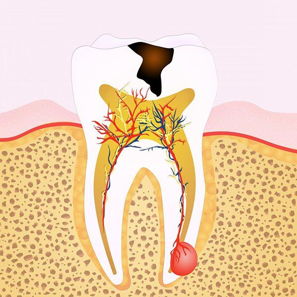 7 Warning Signs You Might Need Root Canal Treatment www.glenroydental.com.au