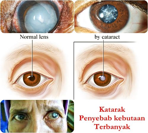 obat mata katarak herbal yang berkhasiat mengobati katarak Anda secara alami tanpa operasi